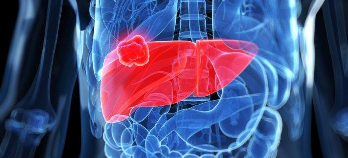 Doctor's Corner: Eliminating Viral Hepatitis Through Awareness
